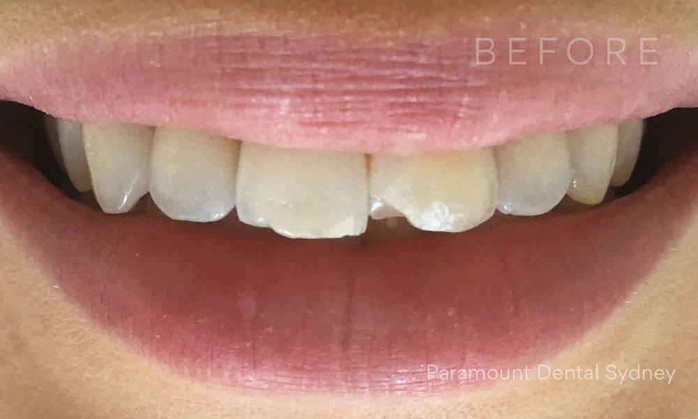 © Paramount Dental Sydney Veneers Before and After 4 Before.jpg