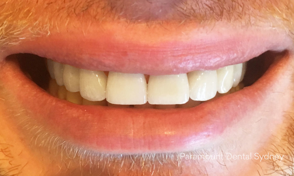 After:  Porcelain Veneers  and  Whitening  on bottom teeth