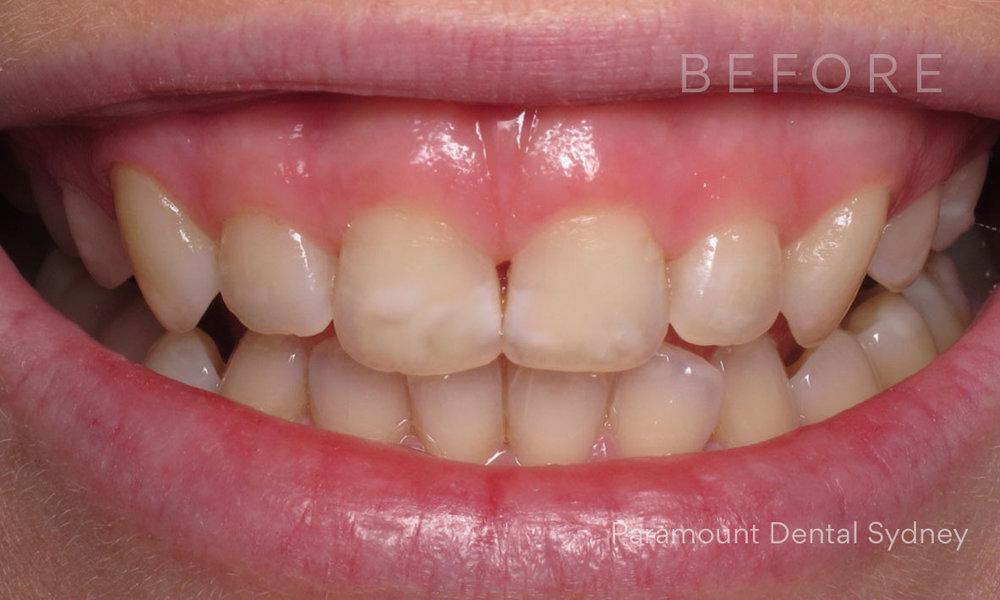 © Paramount Dental Sydney Veneers Before and After 2 Before.jpg