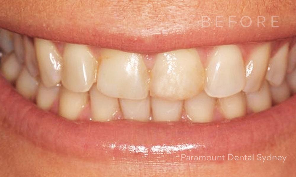 © Paramount Dental Sydney Veneers Before and After 3 Before.jpg
