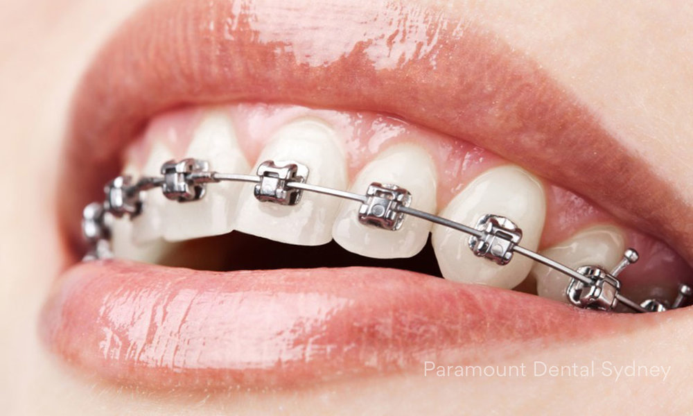 © Paramount Dental Sydney Metal and Coloured Braces.jpg