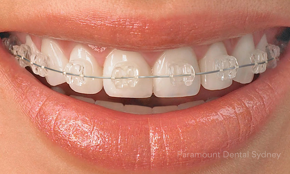 Ceramic Braces - Less visible than regular metal braces.→