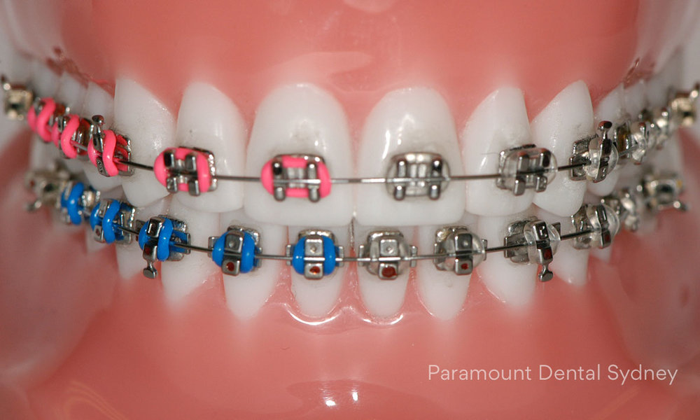 Metal & Coloured Braces - Plain or colour, your pick.→
