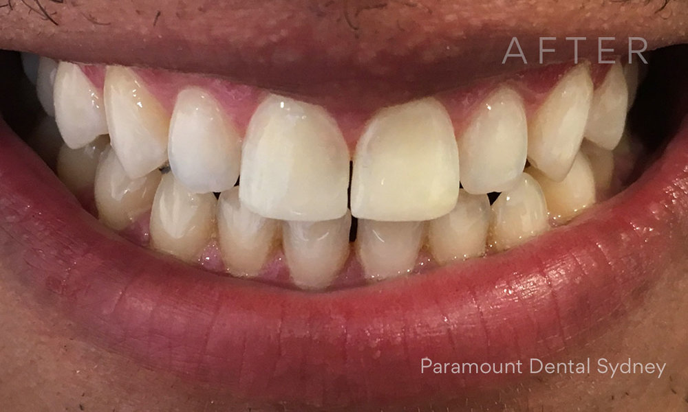 After:  Porcelain Veneers  and  Whitening