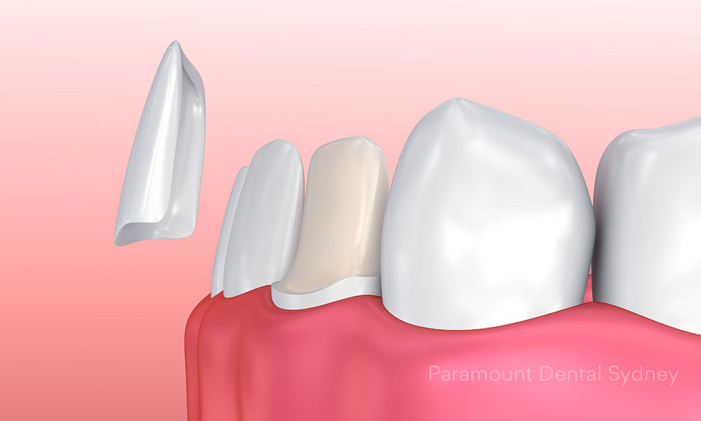 Porcelain Veneers - Small sheets of tooth coloured resin custom fit over your teeth→