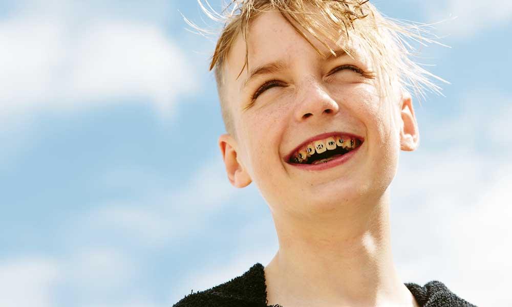 Orthodontics (Teeth Straightening) - →