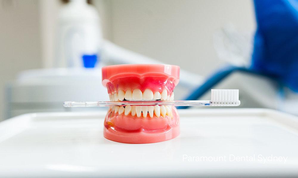 © Paramount Dental Sydney Bacteria 4.jpg