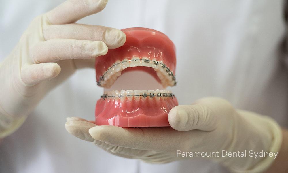 © Paramount Dental Sydney Ortho 04.jpg