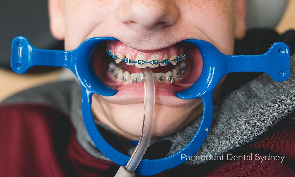 © Paramount Dental Sydney Ortho 02.jpg