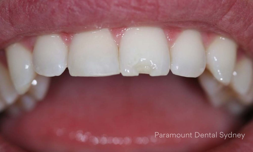 ©-Paramount-Dental-Sydney-Cosmetic-Problems-Cracked-Chipped-Broken.jpg