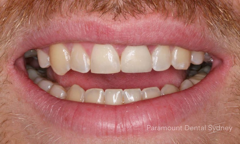 ©-Paramount-Dental-Sydney-Cosmetic-Problems-Discoloured.jpg