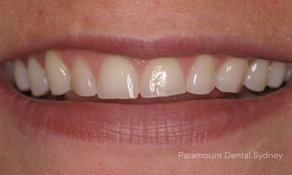 ©-Paramount-Dental-Sydney-Cosmetic-Problems-Worn-Teeth.jpg