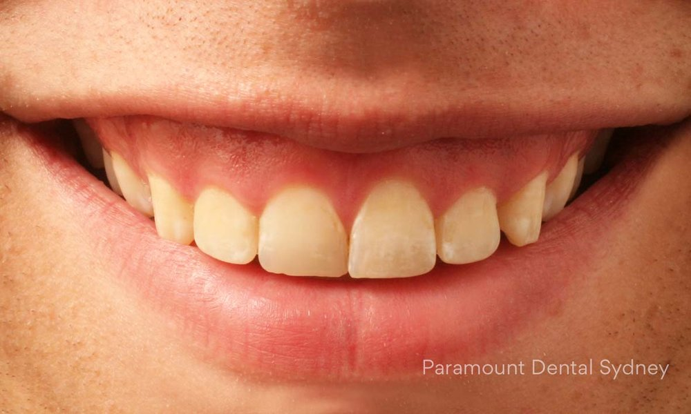 ©-Paramount-Dental-Sydney-Cosmetic-Problems-Gummy-Smile.jpg