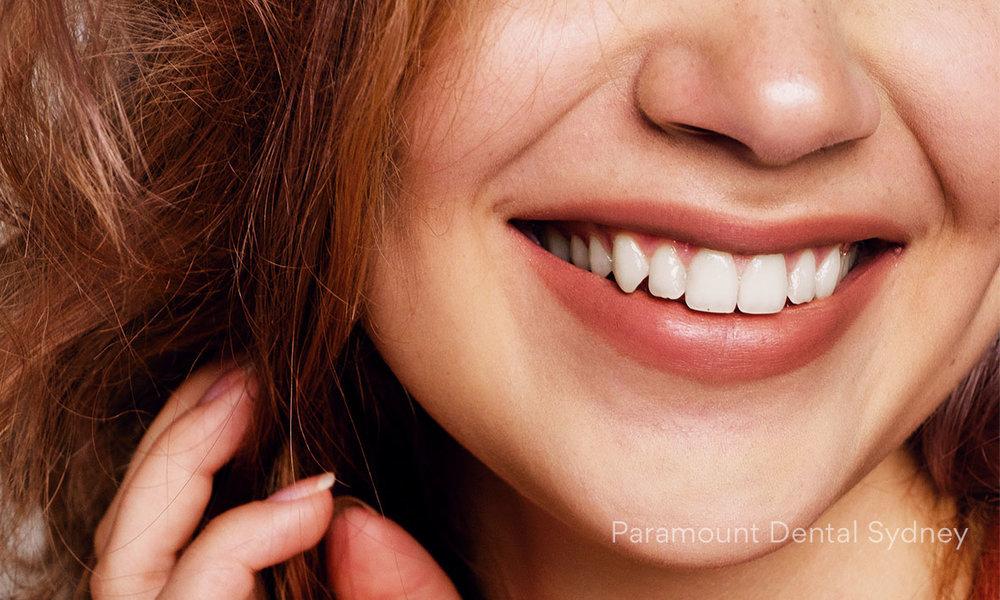 ©-Paramount-Dental-Sydney-Cosmetic-Problems-2.jpg