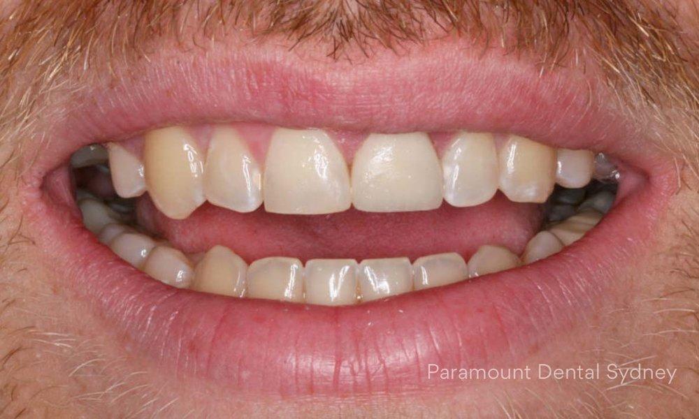 Discoloured Teeth - →