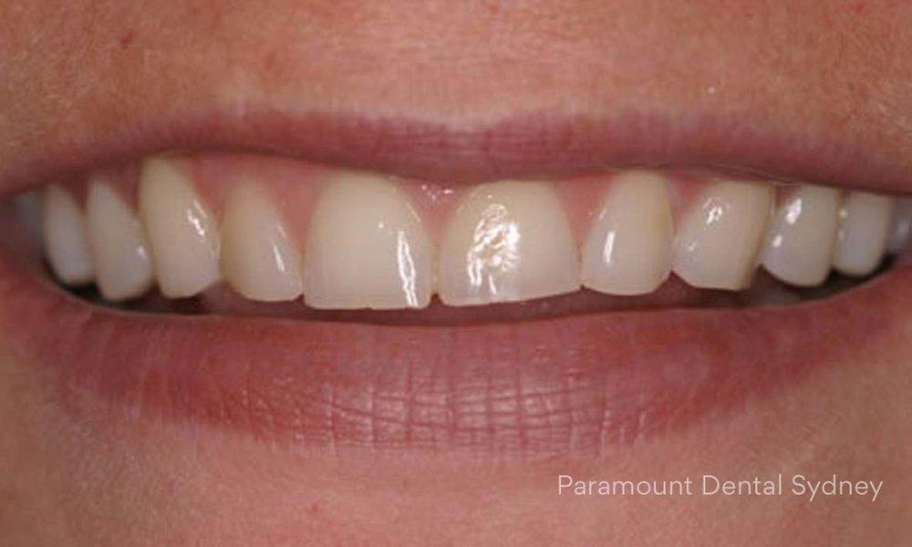 Worn Teeth - →