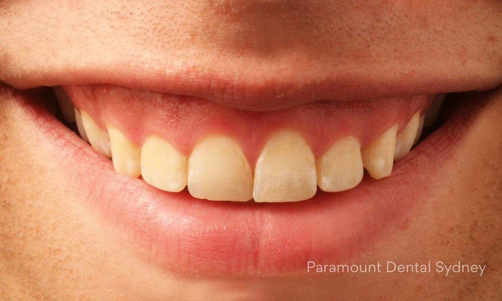 Gummy Smile - →