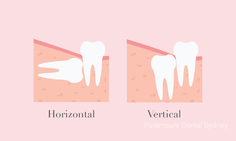 © Paramount Dental Sydney Wisdom Teeth 04.jpg