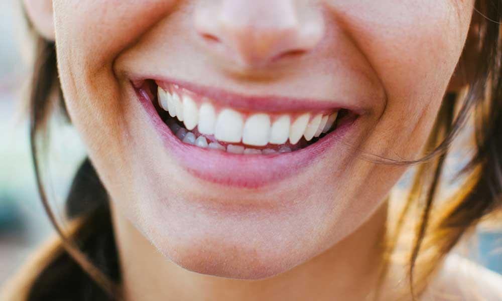 Teeth Whitening - →