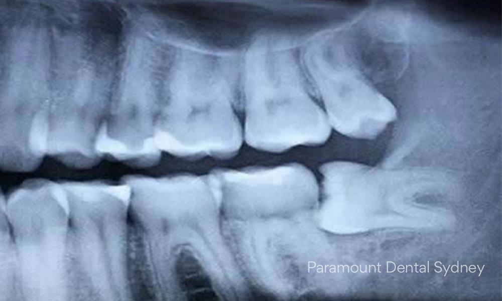 © Paramount Dental Sydney Pericoronitis 02.jpg