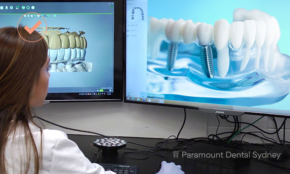 © Paramount Dental Sydney Dental Implants Digital Surgery.jpg