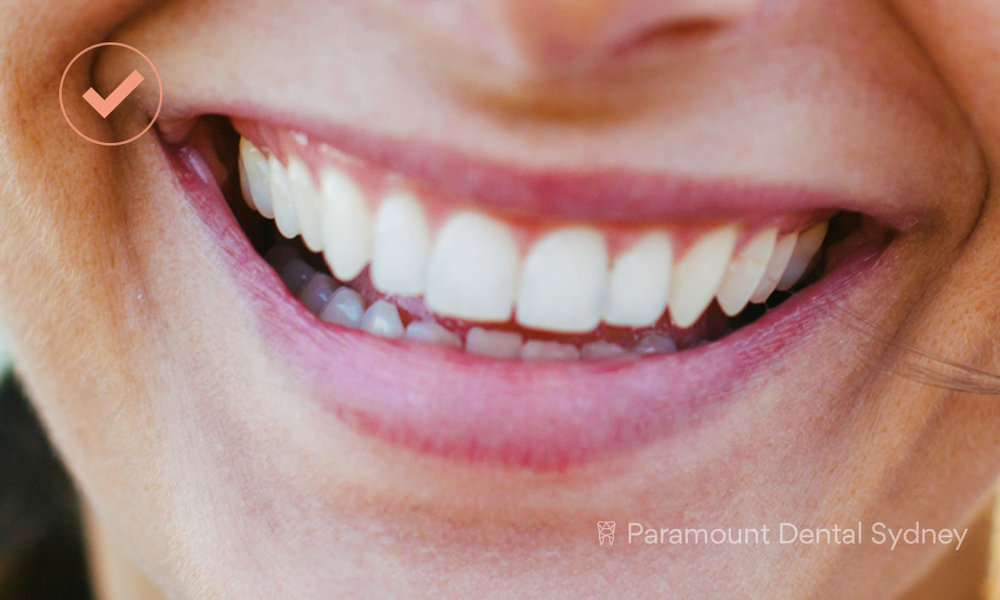 © Paramount Dental Sydney Dental Implants Pain-Free.jpg