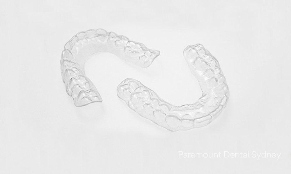 © Paramount Dental Sydney After braces 06.jpg
