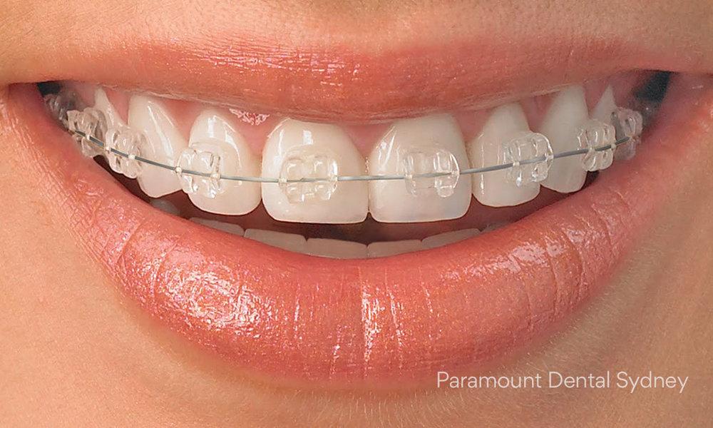 © Paramount Dental Sydney After braces 04.jpg