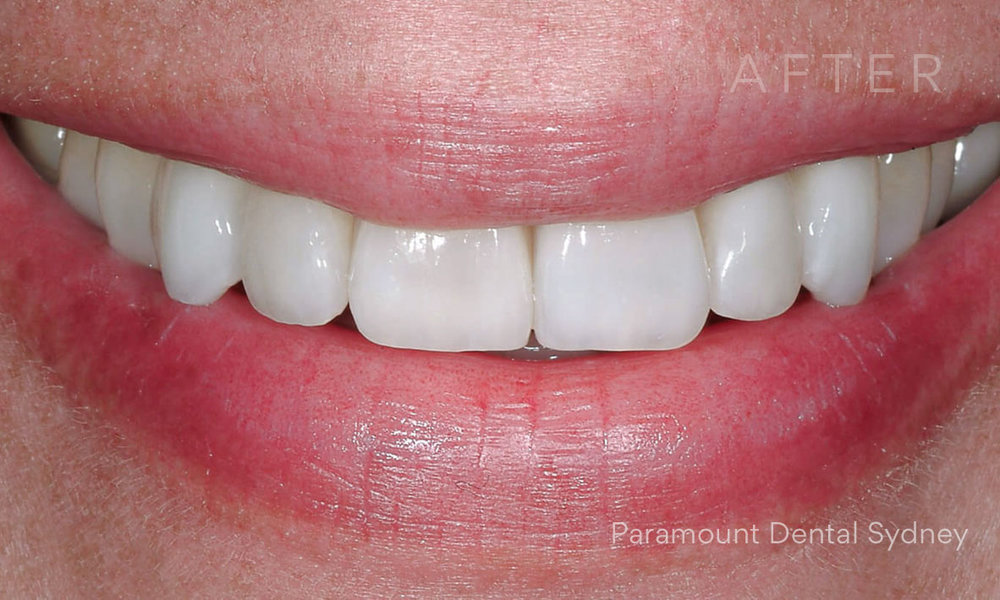 After:  Porcelain Veneers