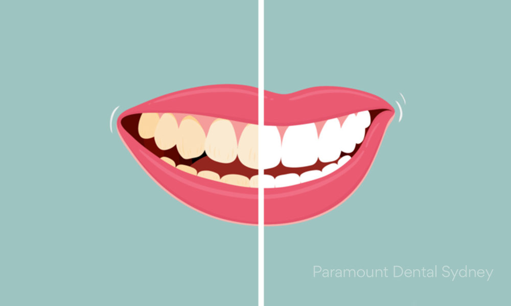 © Paramount Dental Sydney Teeth Whitening 02.jpg
