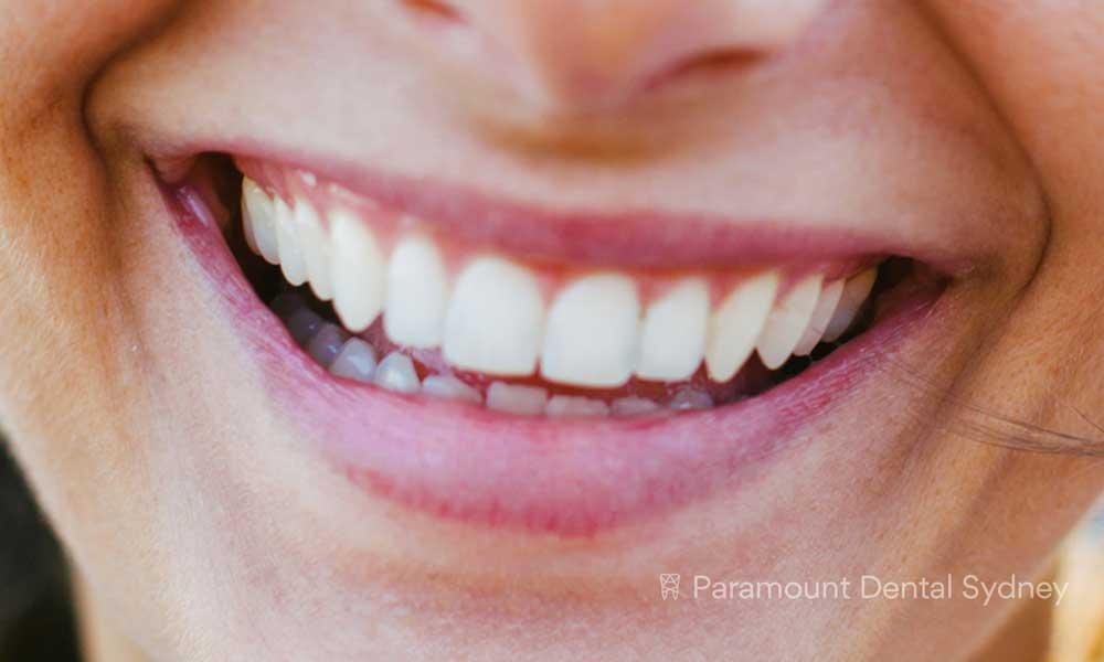 Cosmetic Solutions - 〰️Teeth Whitening, Dental Implants, Veneers & Smile Makeovers