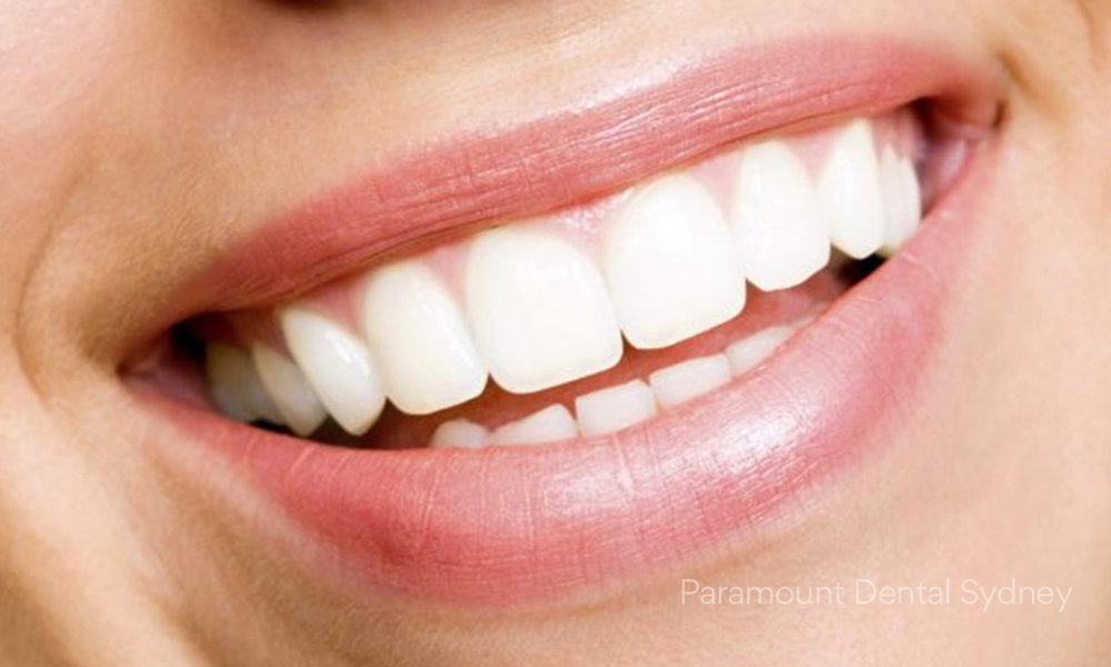 © Paramount Dental Sydney Quick Smile Makeover Solutions 02.jpg