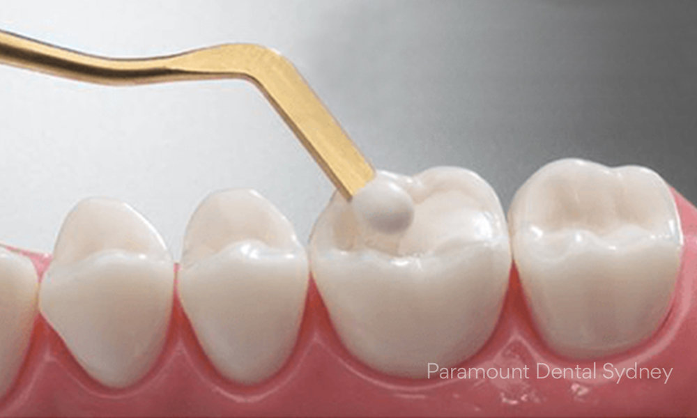 © Paramount Dental Sydney Quick Smile Makeover Solutions 06.jpg