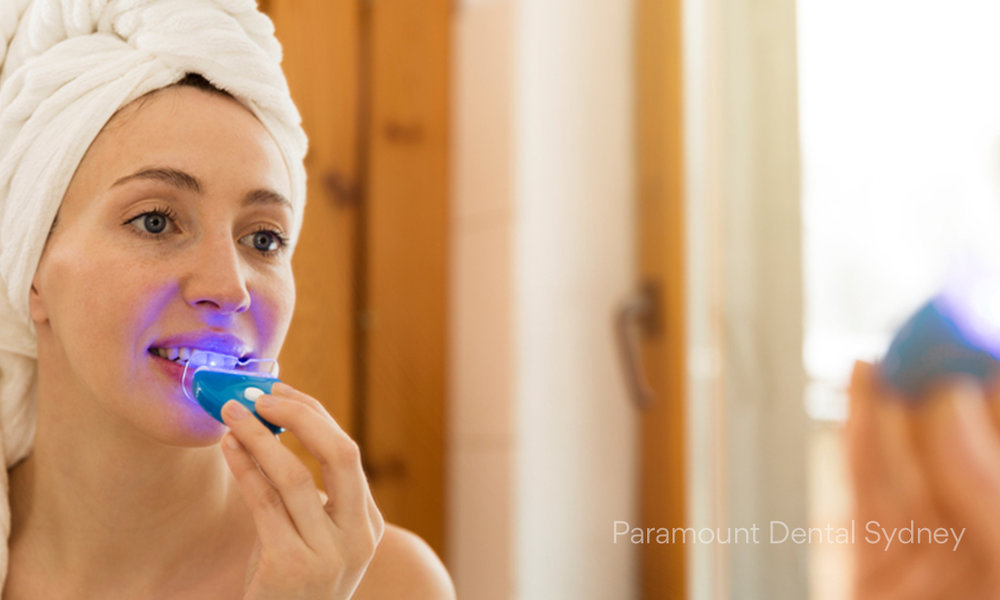 © Paramount Dental Sydney Store-Bought Teeth Whitening Treatments 03.jpg