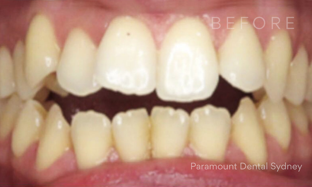 Before:  Crowded, Crooked , Worn Teeth and Discolouration