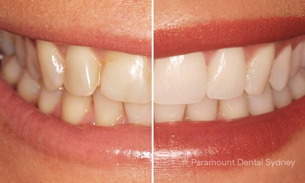 Smile Gallery - 〰️See our before and after smile makeovers