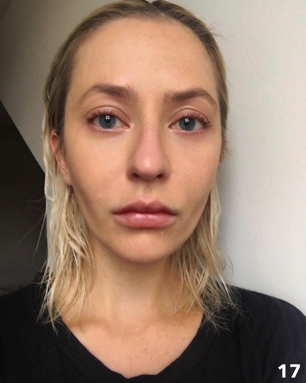 alyonka anorexia