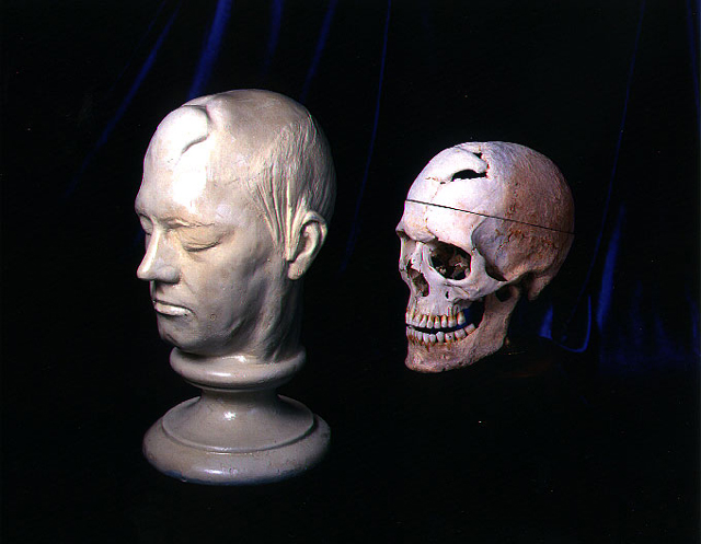 Phineas Gage's skull and life mask,  Francis A. Countway Library of Medicine, Warren Anatomical Museum, Harvard. Photo: Graham Gordon Ramsay