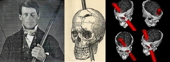 Phineas Gage: Daguerrotype, historic engraving and MRI. Warren Anatomical Museum, Harvard.