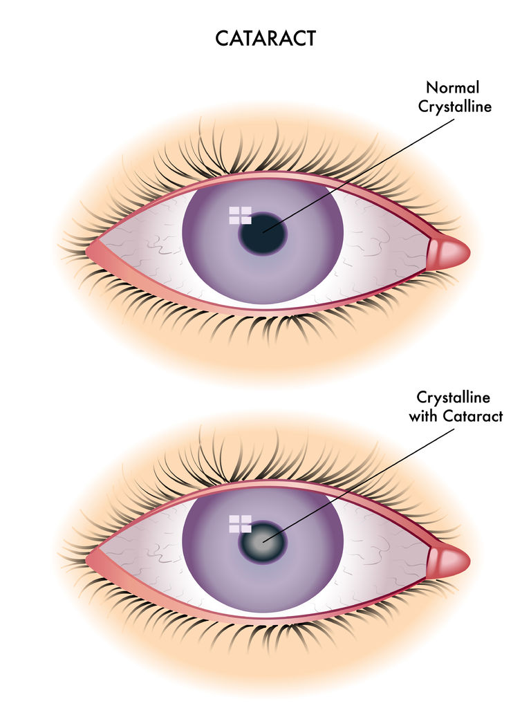 41236040-Cataract-Eye-disease-cataract-The-structure-of-the-eye-A-cataract-is-an-clouding-crystalline-lens-in-Stock-Vector.jpg