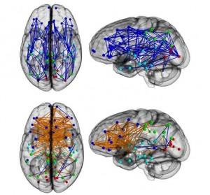 Conexiones intrahemisféricas en hombres (arriba) y mujeres (abajo). [Tomada de la nota en Sciencedaily].
