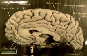 Imagen publicada en el artículo original. En el recuadro verde se nombra al cuerpo calloso, señalado en el cerebro.