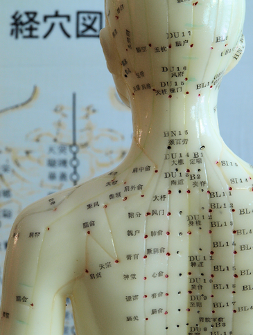 "In traditional Chinese medicine, acupuncture is linked to the belief that disease is caused by disruptions to the flow of energy, or qi, in the body. Inserting hair-thin needles into acupuncture points under the skin release this qi. The qi then travels through channels called meridians.     Ultimately acupuncture is a remarkably simple technique that depends entirely upon one thing: the stimulation of the peripheral nervous system. By promoting blood flow & creating micro-traumas acupuncture induces the body's ability to heal injuries to the tissue through nervous system, immune and endocrine activation. As the body heals the micro traumas, it also heals surrounding tissue damage.   Acupuncture releases natural painkillers through neuro-hormonal pathways, and studies show that acupuncture also works by reducing pro-inflammatory markers, or proteins, in the body which decrease inflammation and further reduce chronic pain.     Acupuncture treats conditions from chronic pain, to psycho-emotional disorders, fertility and female health, to digestive disorders.    The major differences between Eastern and Western medicine is in the usage. Western medicine is focused on the treatment of acute disease. Many tests performed in western medicine will not be triggered as abnormal unless the person being tested is already very sick. If a person goes to see a doctor complaining of headaches, digestive problems, fatigue and insomnia, and the tests come back ""normal"", the patient is told there's nothing wrong. Which is clearly not the case.    As acupuncturists, we see symptoms as manifestations of an underlying disease process. This progression from malfunction -> disease process -> symptom can take years. So we address the symptom AND the disease process. Even when that disease process hasn't yet become acute. We also believe that a disease process can give rise to many different symptoms that may seem unrelated. For example, headaches, heartburn and skin rashes may all be expressions of the same underlying problem that has not yet manifested. This is why we want to know all about all the facets of your body. Your sleep habits, your digestion, your bowel movements, your body temperature. We're simply looking at your body as a whole and trying to determine what imbalances are present in your body and where you are in the disease process. Because we ideally help create balance in your body and reverse the disease process before it turns into an acute condition."