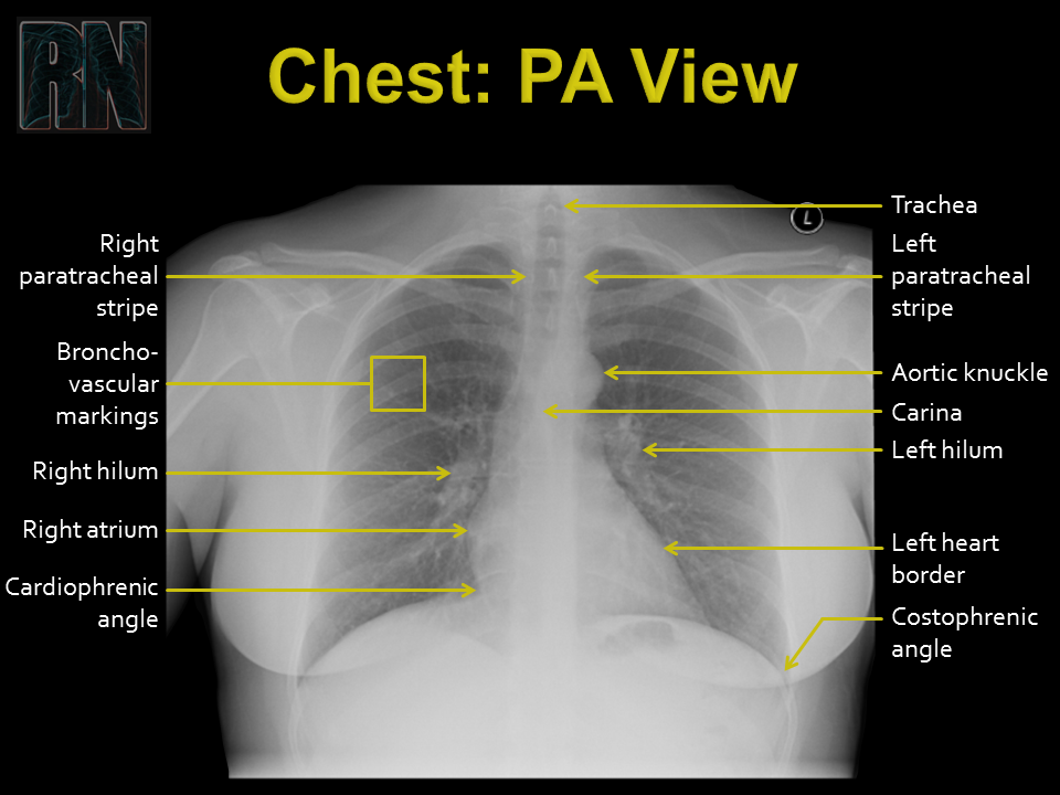 Chest PA - 1.PNG