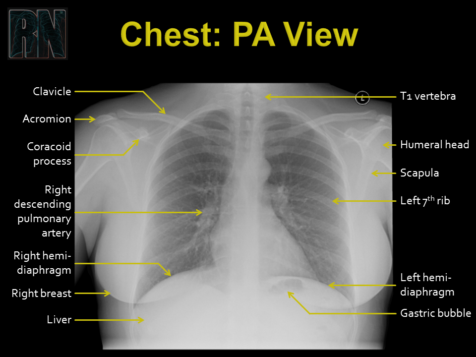 Chest PA - 2.PNG