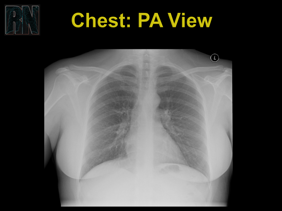 Chest PA - unlabelled.PNG