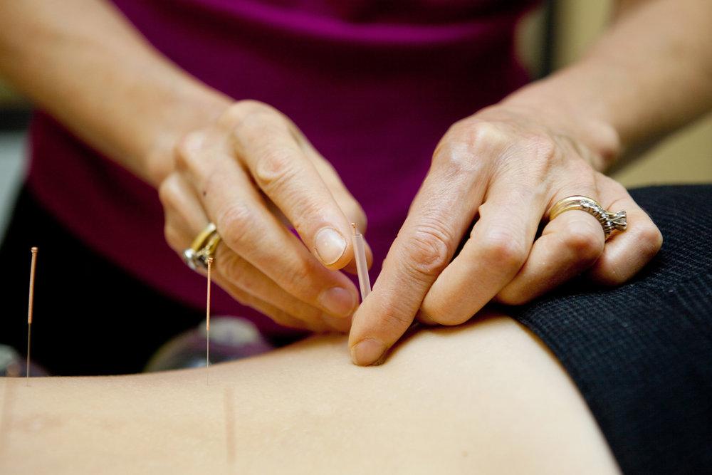 Dubbo Acupuncture