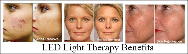 red-light-therapy-before-and-after-pics