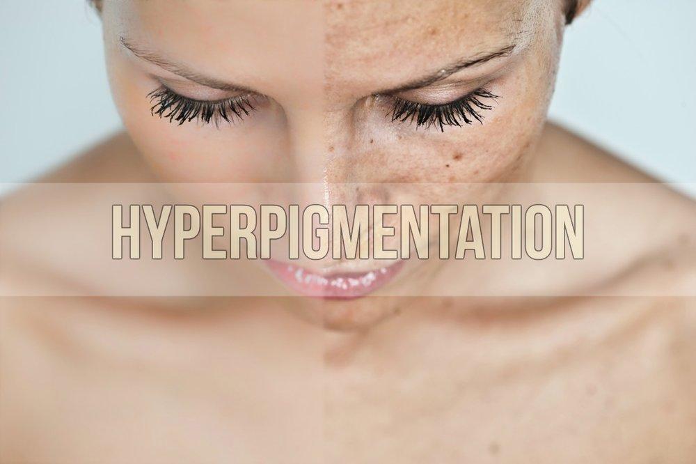 Hyperpigmentation.jpg