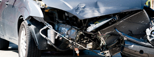 Auto-Accident Injury -